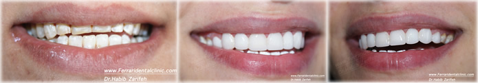 composite-veneers-hollywood-smile