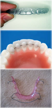 orthodontics-apliances9