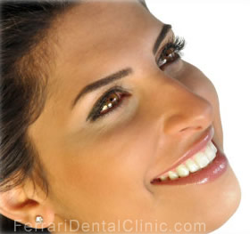 veneers-cosmetics-hollywood-smile1