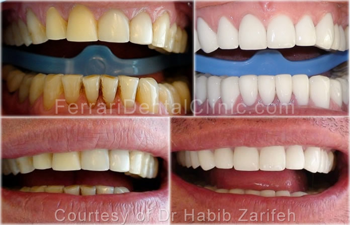 veneers-cosmetics-hollywood-smile2