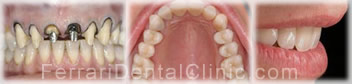 veneers-cosmetics-hollywood-smile5