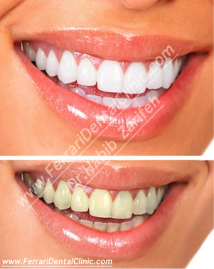veneers-hollywood-smile