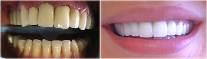 veneers-hollywood-smile2